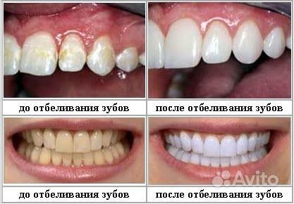 Как отбелить самостоятельно зубы